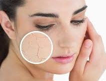 how to treat dry skin los angeles california